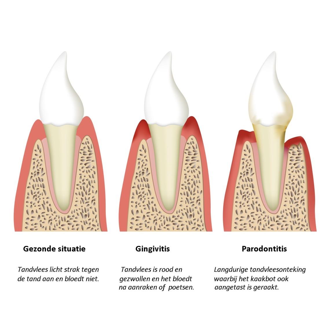 middeltjes tegen ontstoken tandvlees